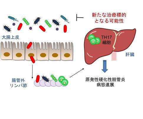 硬化 原発 胆管 炎 性 性