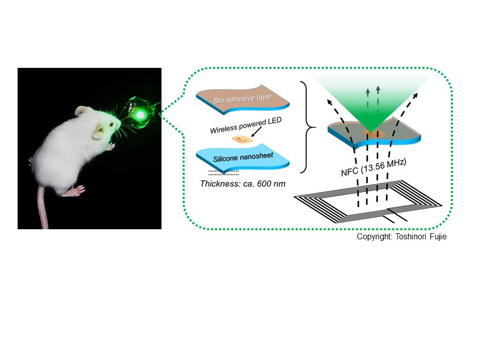 Bioadhesive, wirelessly-powered implant emitting light to kill cancer cells
