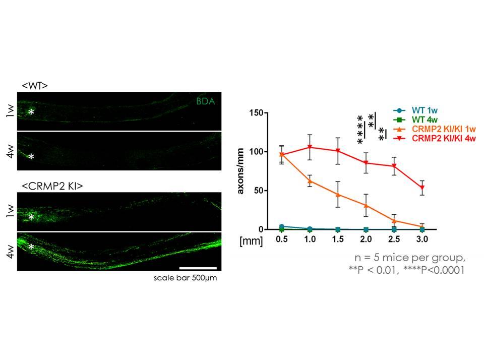 Inhibition of protein phosphorylation promotes optic nerve regeneration after injury